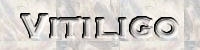 ▷ Vitiligo Wunder – Wie man Vitiligo heilen kann